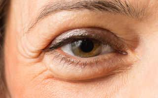 Убираем мешки под глазами, 5 эффективных методов