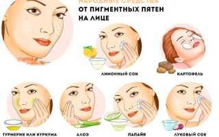 Как отбелить лицо – отбеливающие средства, крема, маски, лосьоны, народные рецепты от пигментных пятен