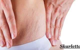 Стрии (растяжки на коже) – причины появления, способы лечения