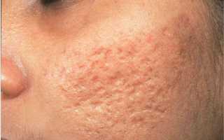 Как убрать шрамы от прыщей на лице – 10 способов