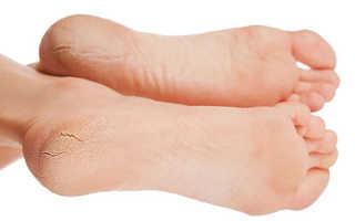 Трещины на пятках – причины и лечение в домашних условиях