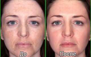 Фотоомоложение лица в том числе после 50 лет: что это такое, отзывы, фото до и после