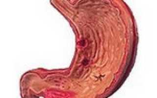 Эрозия желудка – симптомы и лечение, фото
