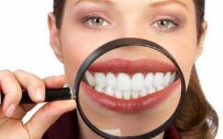 Отбеливание зубов – польза или вред