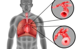 Классификация астматических заболеваний