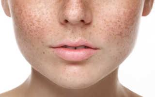 Причины появления и лечение пигментных пятен на лице при беременности