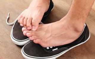 Эффективные способы избавления от неприятного запаха ног
