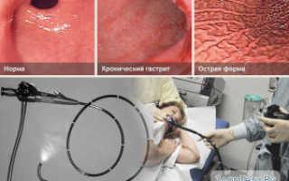 Эффективное лечение эрозивного гастрита средствами народной медицины